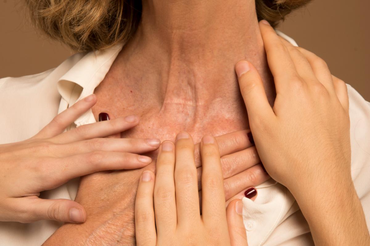 Hipertiroidismo: síntomas y causas