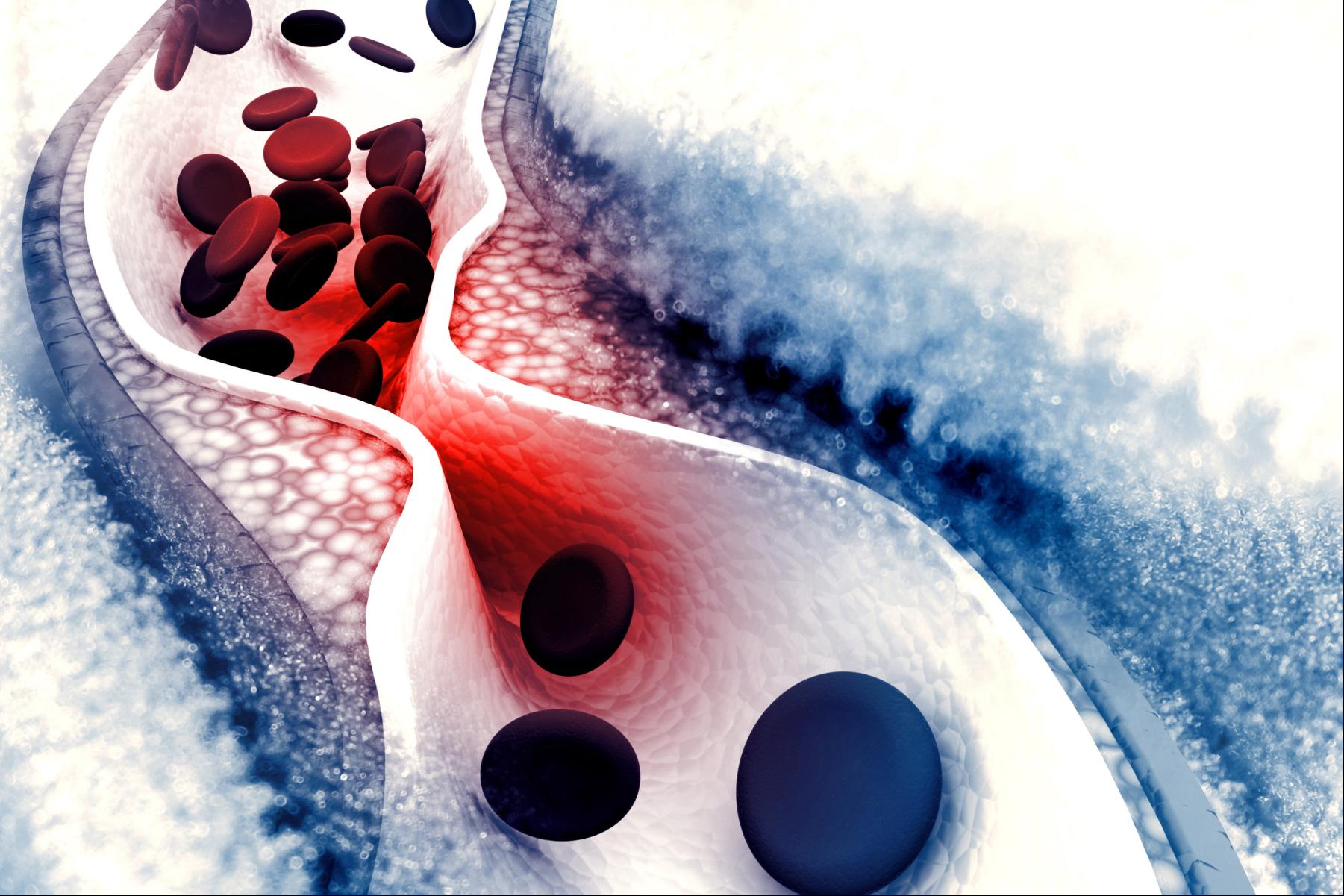 Colesterol y triglicéridos: ciencia, mitos y contexto nutricional. ¡Estima tu riesgo cardiovascular!