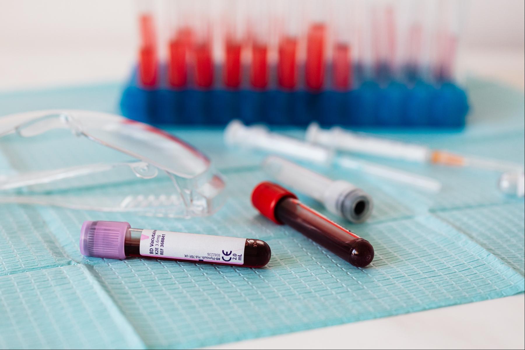 Should I get a Covid-19 antibody test?